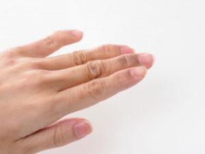 手湿疹がなかなか治らない